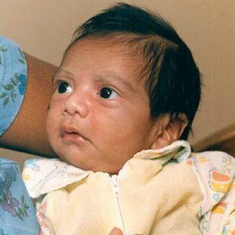 Baby Fae żyła zaledwie 32 dni, z czego 20 - z pawianim sercem.