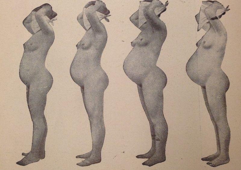 """Lysol (jak i wiele innych środków chemicznych), mógł co najwyżej zabić kobietę, ale nie zapobiec ciąży. Ilustracja z """"Encyklopedii życia seksualnego"""" (1937)."""