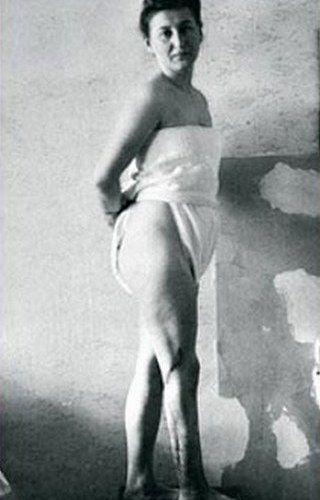 Jedna z byłych więźniarek Ravensbrücku, okaleczona w czasie zbrodniczych eksperymentów (źródło: domena publiczna).