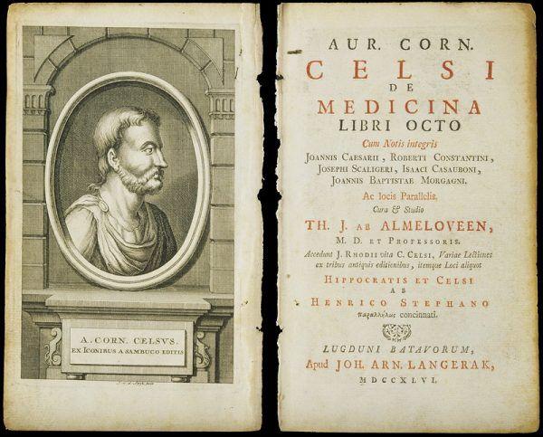 Aulus Cornelius Celsus słusznie zauważył, że resztki jedzenia mogą powodować psucie zębów (źródło: Wellcome Library, London, lic.: CC BY 4.0).