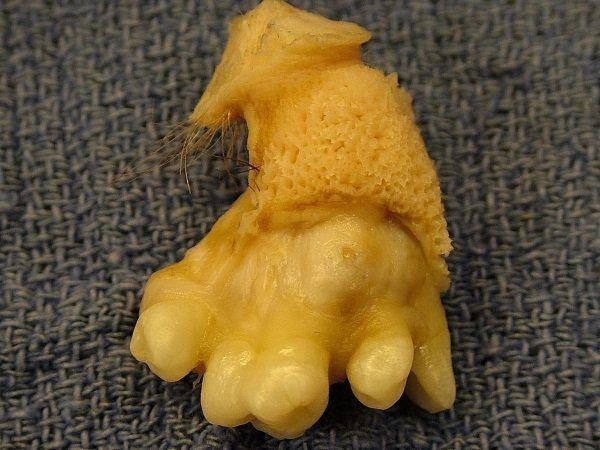 Fragment potworniaka jajnika, w którym wyrosły włosy i zęby .(zdjęcie opublikowane na licencji CCA-SA 3.0, autor: Billie Owens).