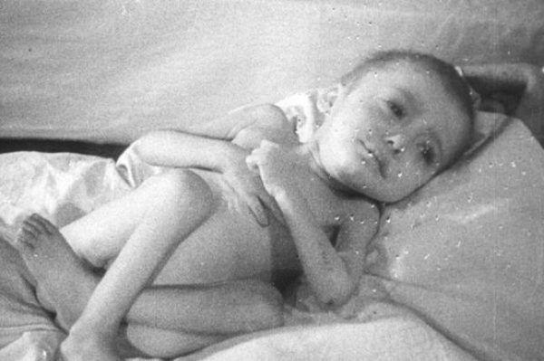 Jedno z niemowląt znalezionych w Auschwitz po wyzwoleniu. Zdjęcie domena publiczna.