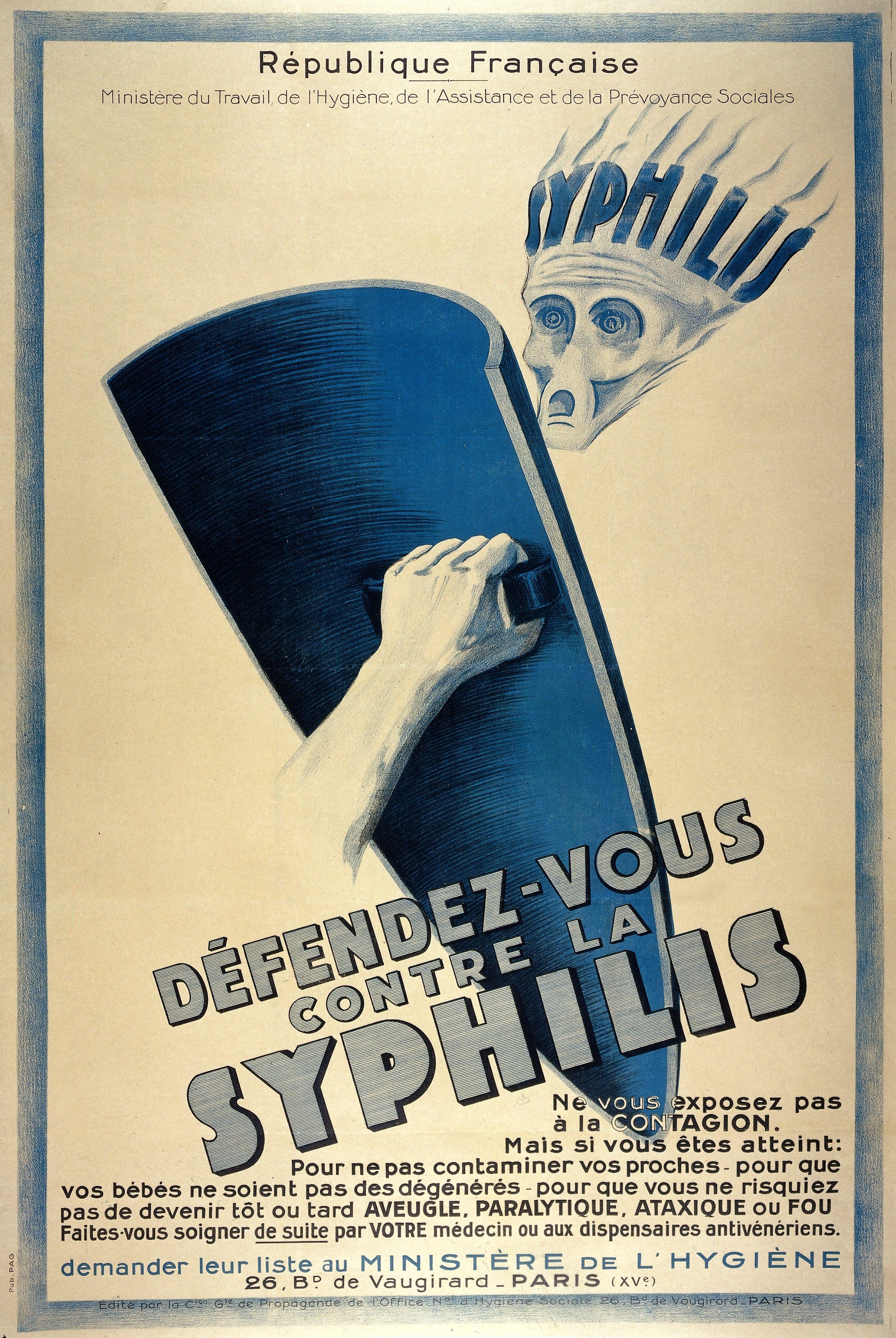 Francukie władze jeszcze przed I wojną światową wzywały do chronienia się przed syfilisem (fot. Wellcome Images, lic. CC BY 4.0).