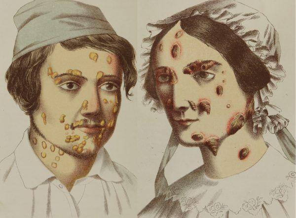 """Nieleczonemu syfilisowi towarzyszyło pojawienie się wrzodów, z których sączyła się wydzielina. Tak chorobę przedstawiali w połowie XIX wieku autorzy książki """"A treatise on gonorrhoea and syphilis"""", Silas Durkee oraz John S. Parry (źródło: domena publiczna)."""