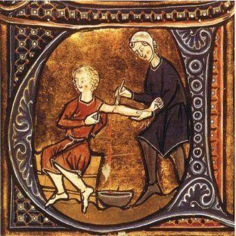 Upuszczanie krwi na średniowiecznej miniaturze. (Fot. domena publiczna).
