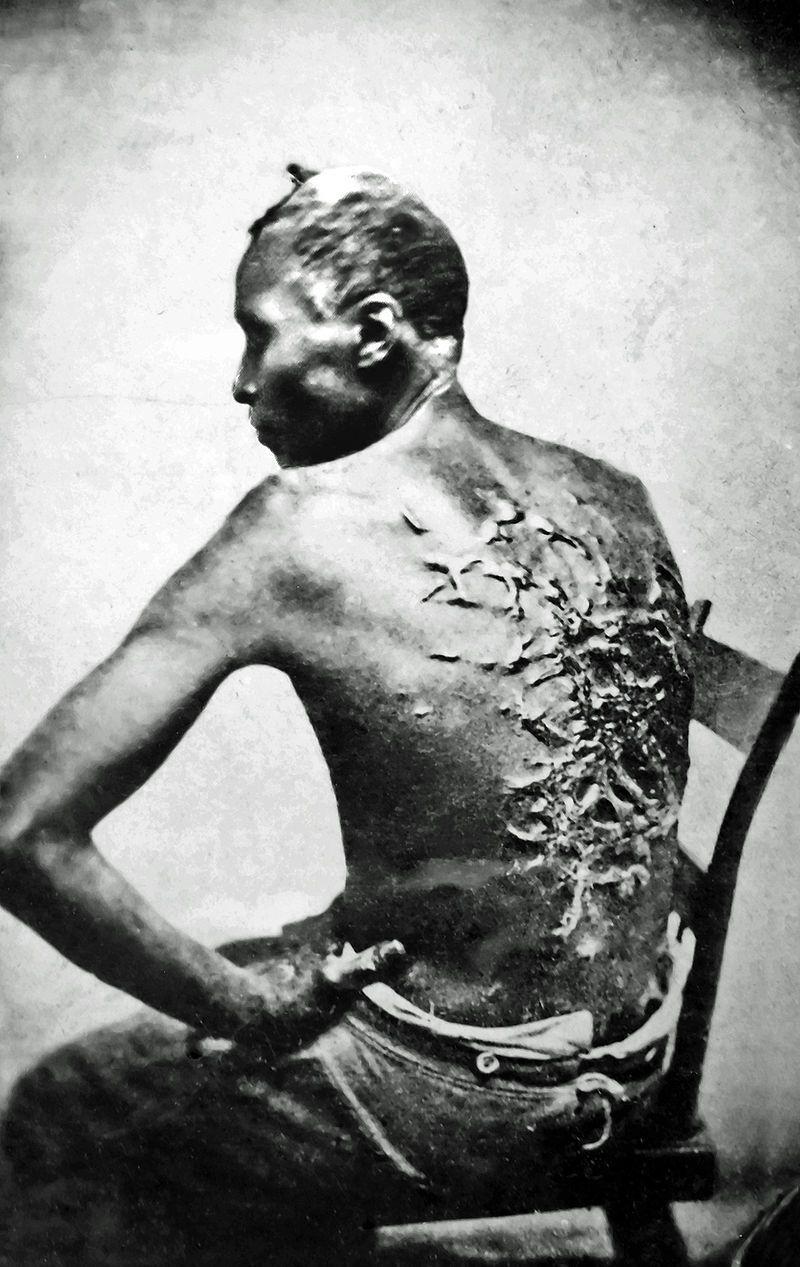 Czarnoskóry niewolnik z bliznami po biczowaniu.