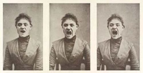 Histeryczne powarkiwania. Seria fotografii z końca XIX wieku, mających ilustrować symptomy zaburzeń histerycznych