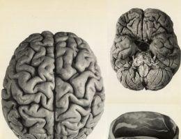 Odlewy mózgu Józefa Piłsudskiego. Ilustracje z wydanego pośmiertnie albumu Maksymiliana Rose.