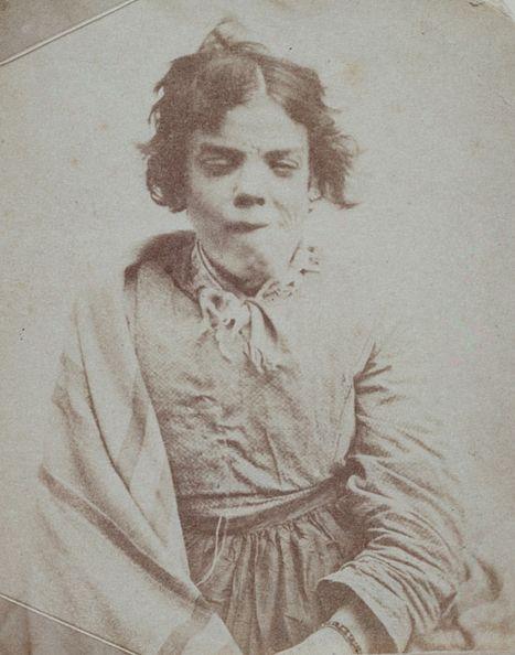 Pacjenta angielskiego zakładu dla obłąkanych na fotografii z połowy XIX wieku. W opinii doktora Mobiusa niczym nie różniła się ona od wszystkich innych kobiet - również umysłowo upośledzonych.