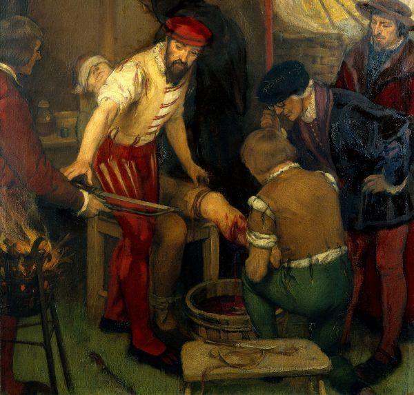"""Ambroise Paré (na ilustracji szykuje się do amputacji nogi pacjenta) miał wiele intrygujących pomysłów na temat właściwości """"leczniczych"""" metali ciężkich i... odchodów."""
