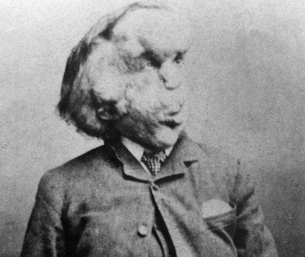 """""""Okazem"""" wystawianym w Londynie stał się na przykład Joseph Merrick, znany jako Człowiek-Słoń."""