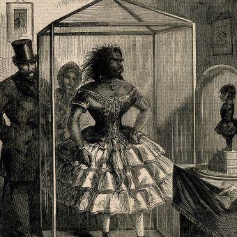 """Julia Pastrana, czyli """"Dama Pawian"""", była pokazywana tak za życia, jak i po śmierci. Podobny los spotkał jej zmarłe niedługo po urodzeniu dziecko."""