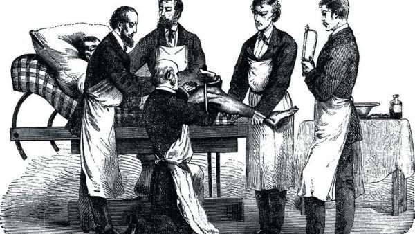 Przed odkryciem znieczulenia lekarze dokonywali zabiegów w jak najkrótszym czasie