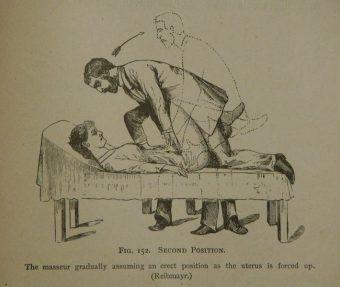 Masaż genitalny wykonywany przez lekarza miał leczyć kobiecą histerię
