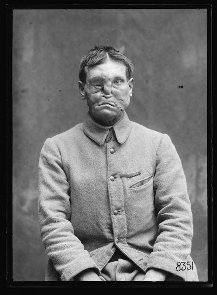 Francuski żołnierz ciężko ranny w czasie I wojny światowej