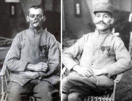 Anna Coleman Ladd wykonywała protezy twarzy dla rannych żołnierzy