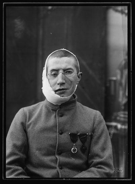 Ranny żołnierz noszący maskę.