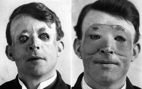 Walter Yeo uważany jest za pierwszego człowieka. który przeszedł operację plastyczną. Operował Harold Gillies