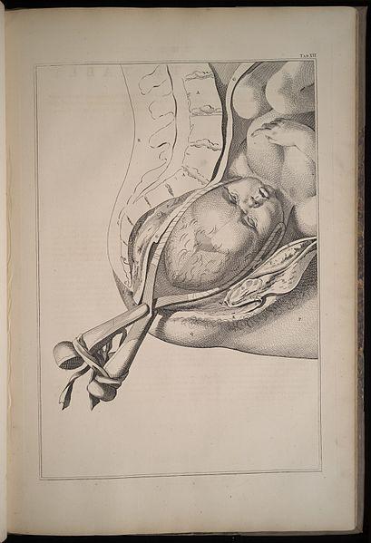 Mężczyźni częściej niż kobiety korzystali z niepotrzebnych narzędzi przy porodzie