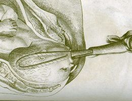 Odbieranie porodów przez mężczyzn przez długi czas rodziło wiele kontrowersji