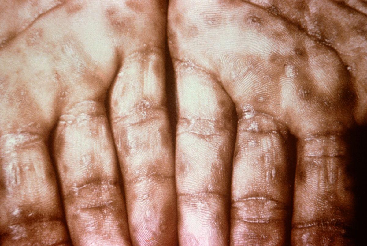Jednym z objawów choroby jest swędząca wysypka, która zmieniała się w cuchnące wrzody.