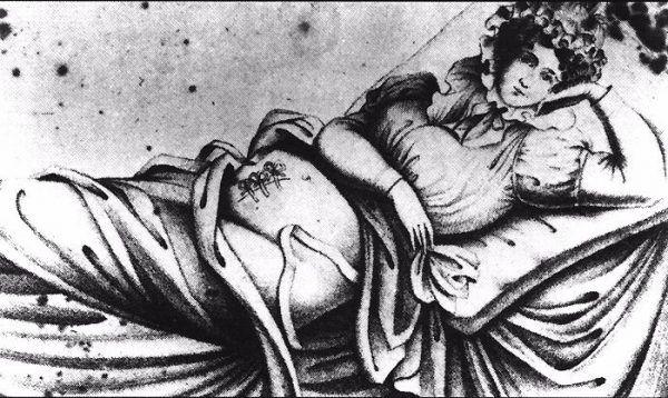 Pierwsze udokumentowane cesarskie cięcie, w którym matka przeżyła przeprowadził... kastrator świń!
