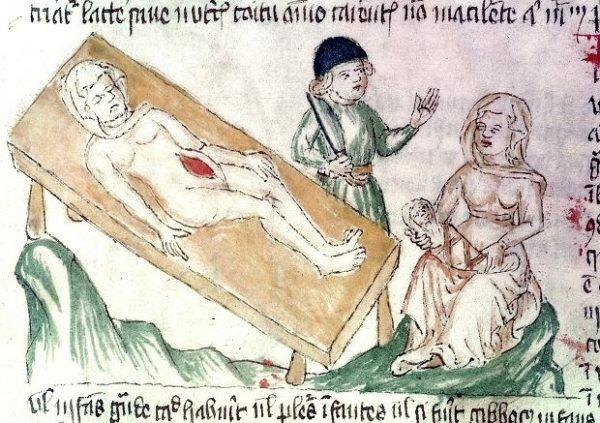Przez wieki uważano, że kobieta nie jest w stanie przeżyć cesarskiego cięcia