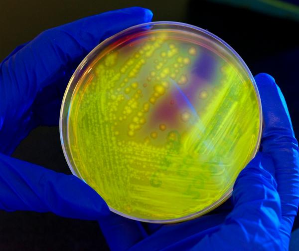 Komórki bakteryjne muszą też utrzymywać odpowiednią objętość płynów w celu zachowania zdrowia; jeśli wody jest za dużo, komórka eksploduje, a jeśli za mało – imploduje.
