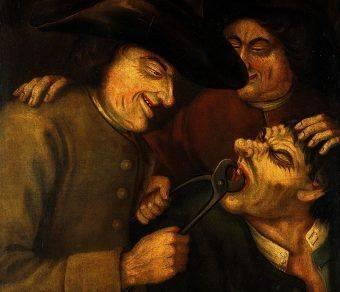 Dawniej leczenie zębów ograniczało się do ich usuwania.
