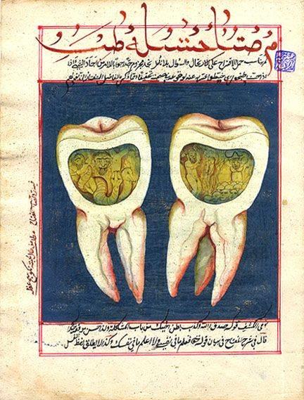 Tureckie wyobrażenie robaka zębowego.