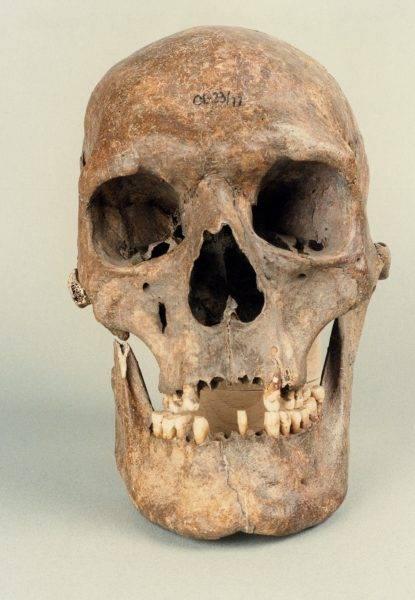 Nietypowa była także budowa czaszki, najprawdopodobniej spowodowana chorobą związaną z wysokim wzrostem. Długa, również masywna żuchwa charakteryzowała się obecnością kątów prostych.