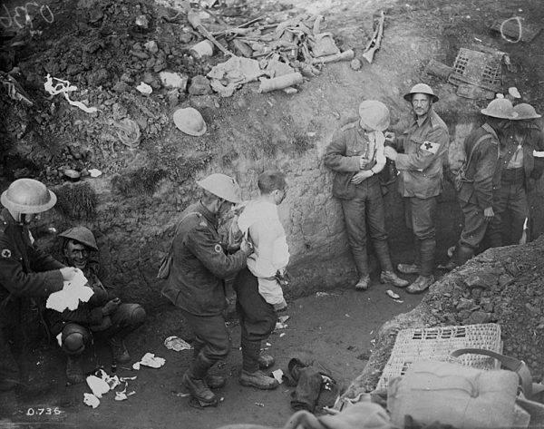 Pod koniec 1914 roku około 10 procent oficerów i 4 procent szeregowych armii brytyjskiej wykazywało znamiona rozstroju nerwowego. W sumie to kilkadziesiąt tysięcy wojskowych!