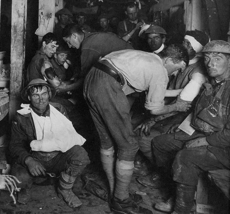 """Po raz pierwszy terminu """"szok artyleryjski"""" użył brytyjski psychiatra Charles Myers w 1915 roku, odnosząc go do żołnierzy, którzy mieli potrzebę ucieczki z pola walki pod wpływem ognia nieprzyjaciela."""