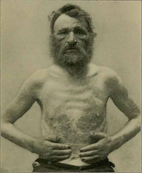 Trędowaci ze Spinalongi w leprozorium wiedli normalne życie.