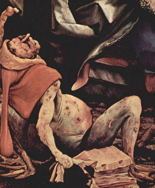 """W najgorszych przypadkach głód staje się wręcz słyszalny. Krzyki głodujących niosą się daleko, zwłaszcza gdy biedaków dotyka tak zwany """"ogień św. Antoniego"""", ergotyzm."""